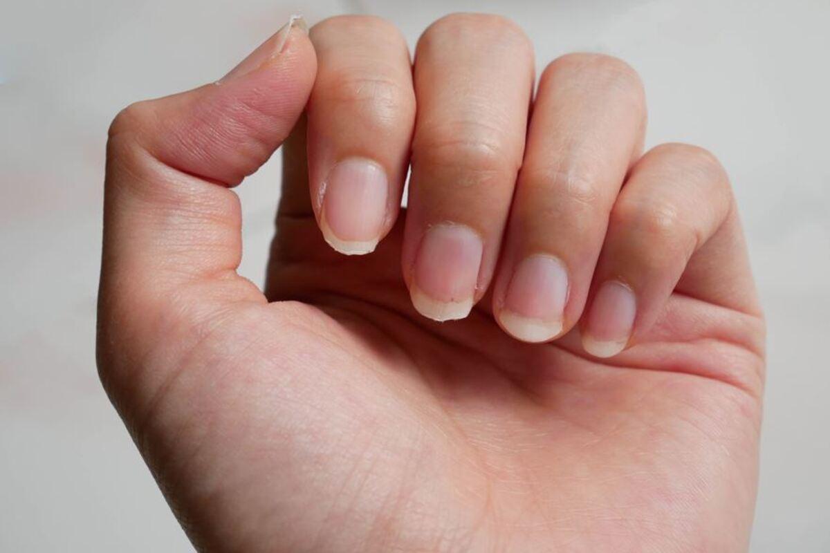 mano unghie spezzate